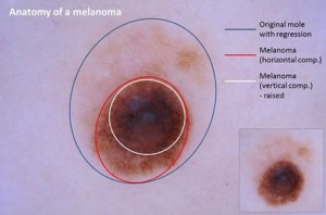A melanoma anatómiája